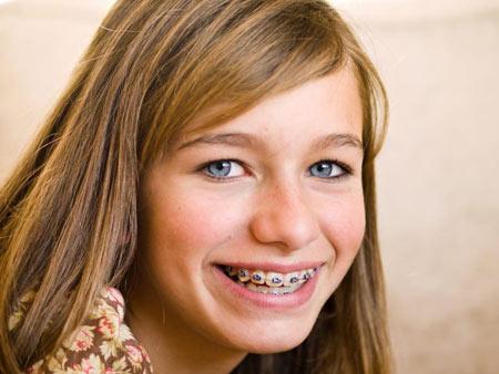 девочка-подросток в брекетах