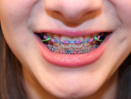 фиолетовые брекеты