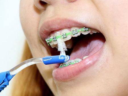гигиена зубов с помощью ершика