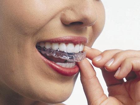 надевание капы для зубов перед сном