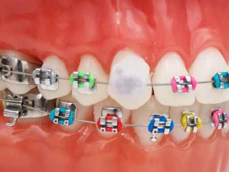 применение ортодонтического воска