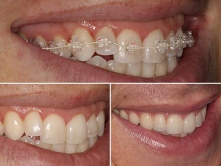 вытягивание зуба на место