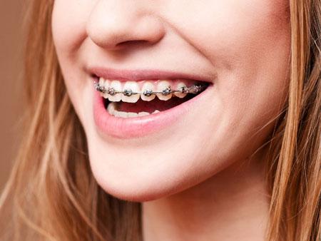 красивая улыбка с брекетами