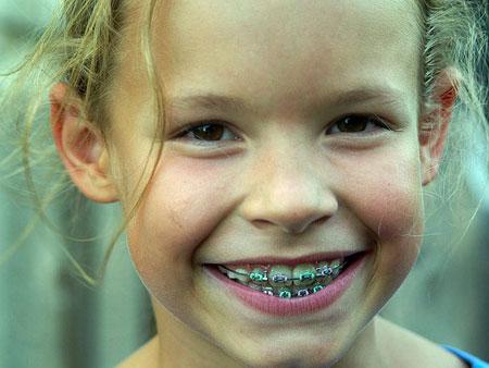 Как сделать чтобы зубы стали белее