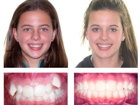 результат лечения на брекетах