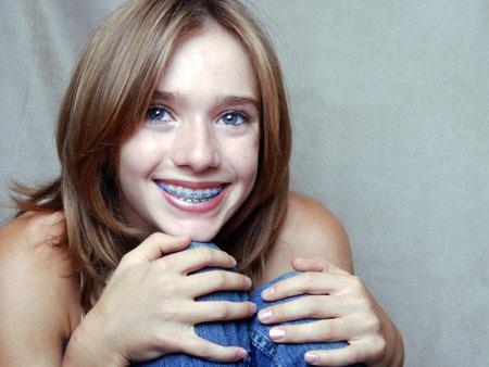 улыбающаяся девочка с брекетами