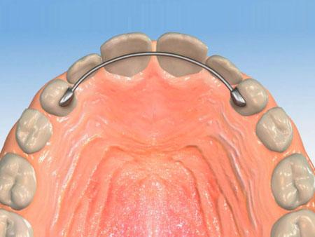 несъемный ретейнер на зубах