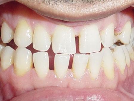 большие зубные промежутки