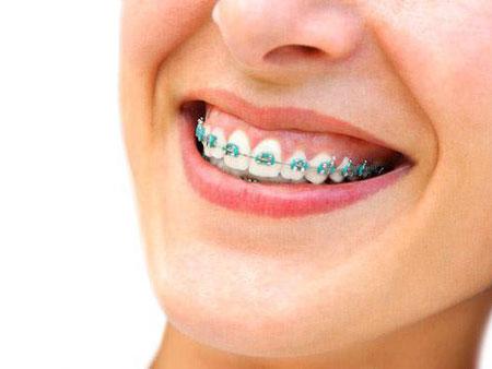 Разновидности современных ортодонтических аппаратов