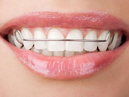 пластинка на зубах