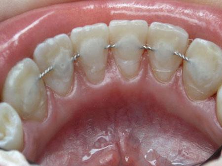 шинирование зубного ряда