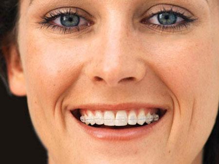 улыбка с сапфировыми брекетами