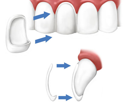 установка винира на зубы