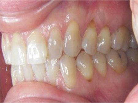 вторая стадия клиновидного дефекта зубов