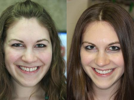 до и после люминиров
