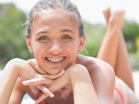брекеты не портят зубы