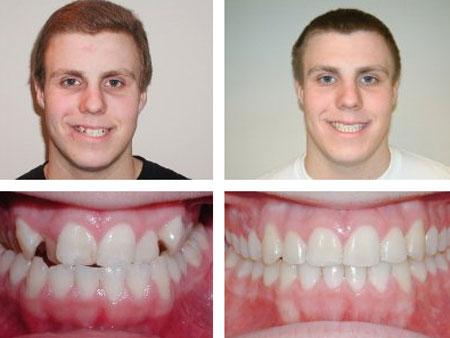 до и после лечения мезиальной патологии прикуса