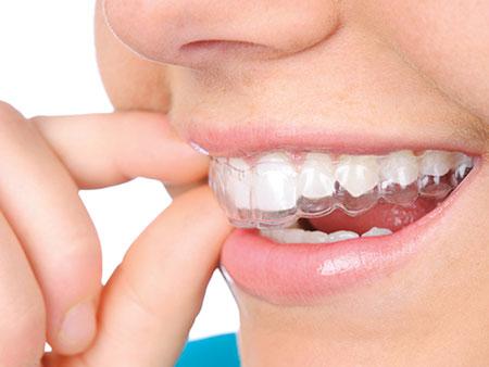 Невидимое выравнивание зубов с помощью элайнеров