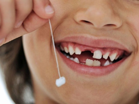Проблемы с молочными зубами и способы их решения