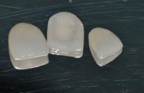 инновационные виниры для зубов perfect