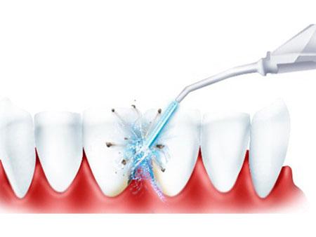очищение полости рта с помощью ирригатора