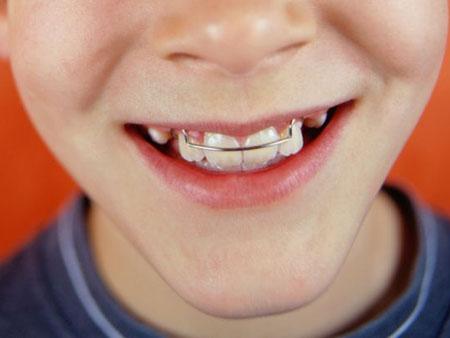 пластинка для зубов подходит исправления прикуса в детском возрасте