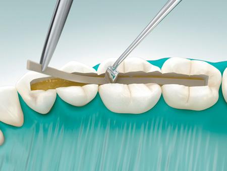 Все о процедуре шинирования зубов