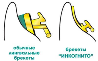 сравнение брекетов инкогнито и других лингвальных систем