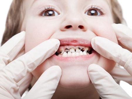 зеленый оттенок зубов у ребенка
