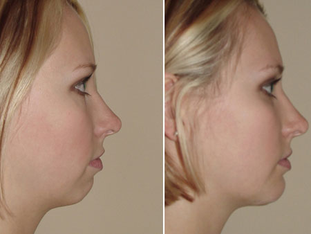до и после лечения микрогении