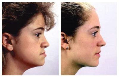 микрогнатия верхней челюсти