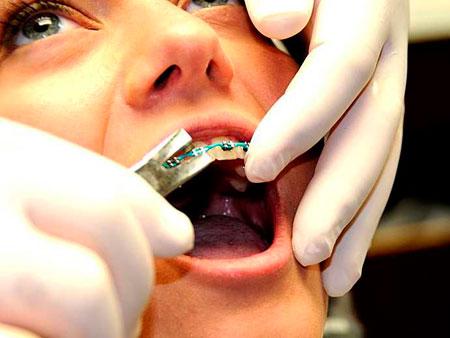ортодонт готовится снять брекеты