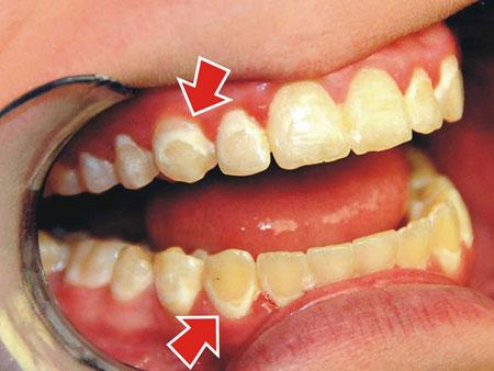 эмаль зубов после брекетов