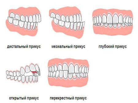 разновидности неправильного прикуса зубов