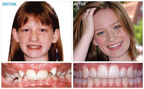 результат успешного исправления прикуса зубов брекетами