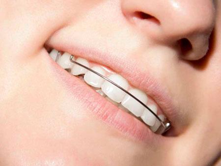 скобки на зубах