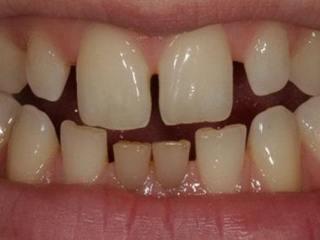 промежутки между зубами
