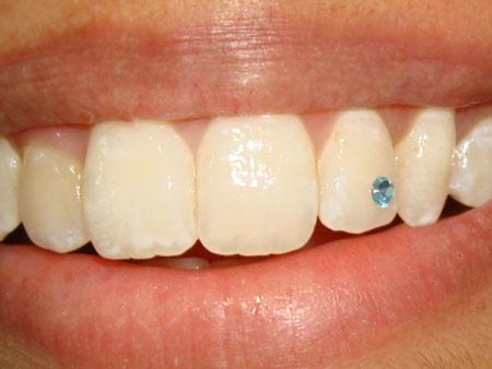 бирюзовый скайс на зубе