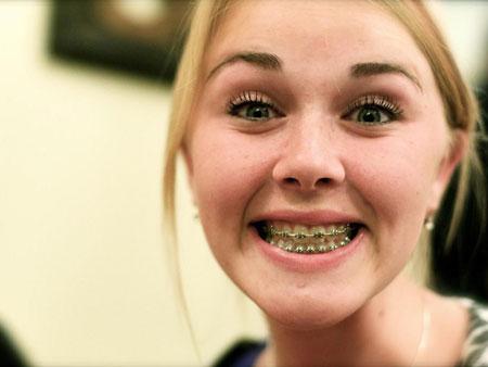девушка улыбается в брекетах