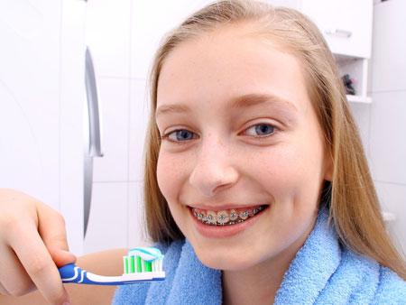Важные правила чистки зубов и гигиены с брекетами