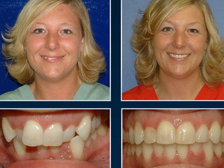 до и после лечения скученных зубов