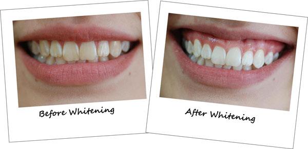 до и после отбеливания amazing white