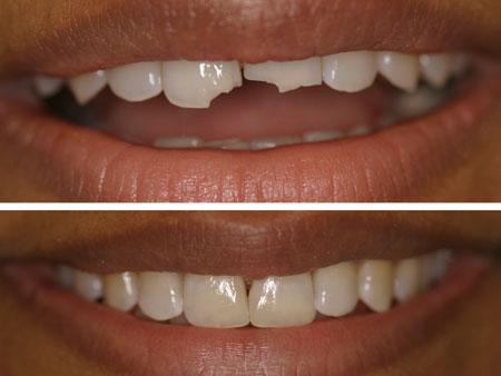 до и после реставрации отколотых зубов