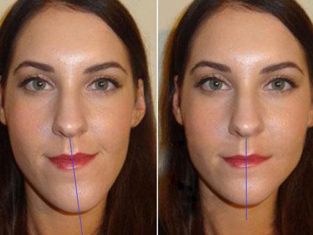 до и после устранения асимметрии лица