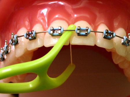 гигиена зубов с нитью