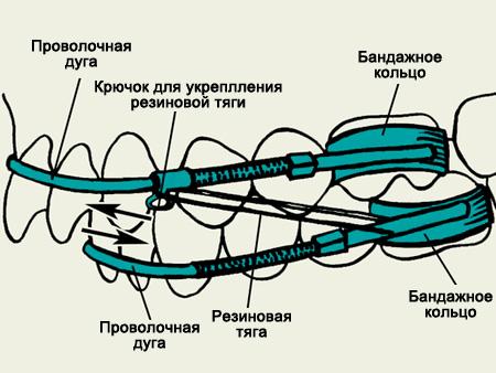 Роль аппаратов Энгля в ортодонтии