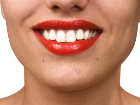 Функции аппарата Гожгариана в ортодонтии