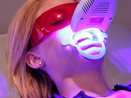 процедура лазерного отбеливания