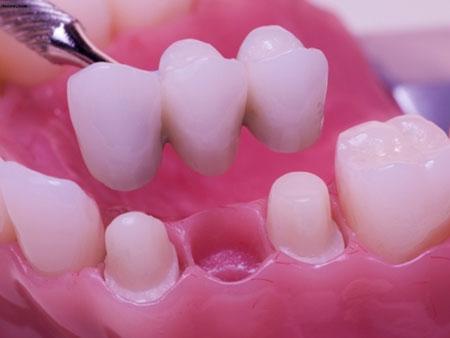 наращивание при полной потери зубов
