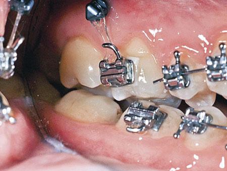 ортодонтический микроимплант